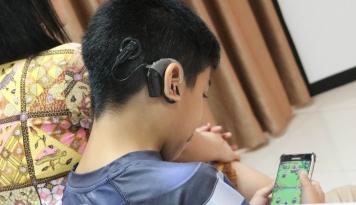 Foto Implan Koklea Solusi Gangguan Pendengaran Pada Anak