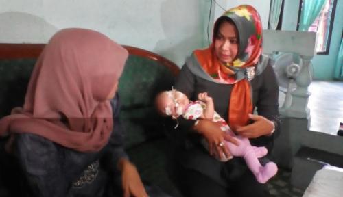 Foto Ganasnya Virus Rubella Serang Bayi Iftiah