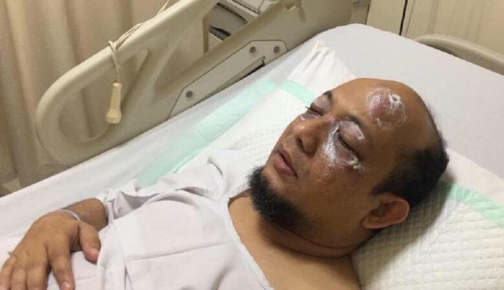 Dewi Tanjung: Novel Baswedan Benjol Gara-Gara Tabrak Pohon - Warta Ekonomi