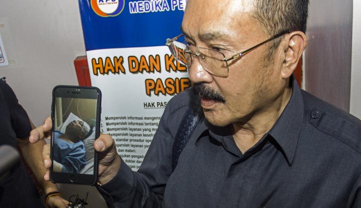 Foto Berita Novanto Kecelakaan, Senior Golkar: Rakyat Sudah Pintar!