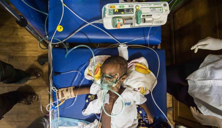 Foto Berita 70 Anak di Asmat Papua Meninggal Karena Gizi Buruk