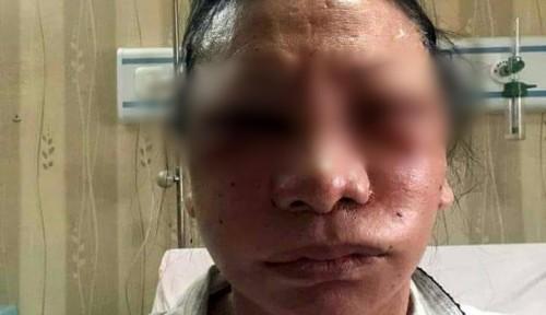 Foto Putri Indonesia Saja Ogah Lakukan Operasi Plastik