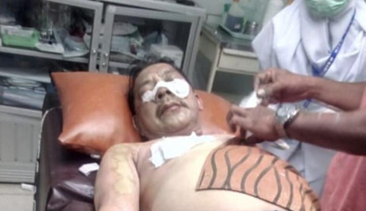 Foto Berita Kadivpas Kemenkumham Kalsel Diserang dengan Air Keras
