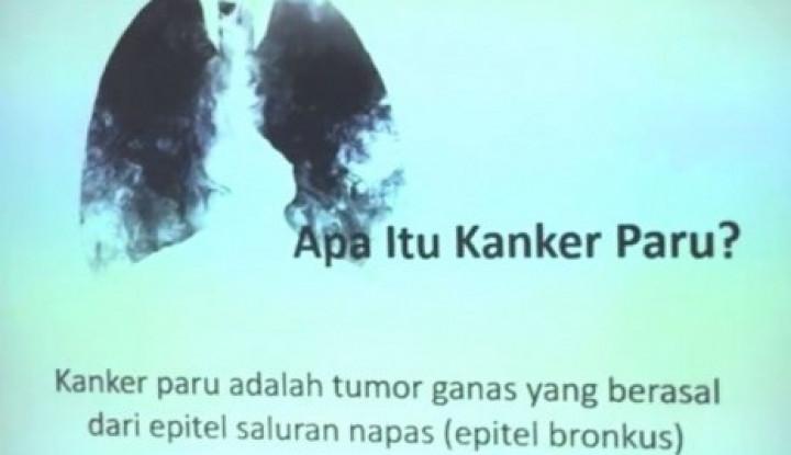 Waspada, Penderita Kanker di Indonesia Terus Meningkat - Warta Ekonomi