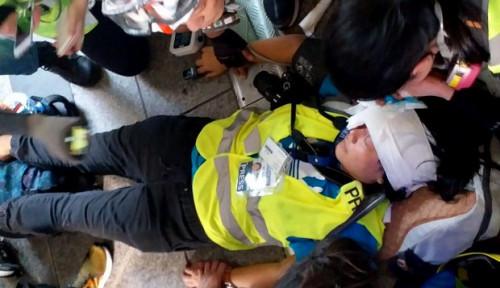 Foto Terbaru, Jurnalis Veby Indah yang Ditembak Polisi Hong Kong Alami Kebutaan