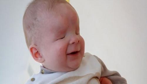 Foto Hanya Dua di Dunia, Bayi di Rusia Terlahir Tanpa Bola Mata tapi Selalu Tersenyum