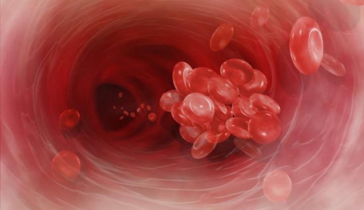 Jangan Anggap Remeh, Pahami Bahaya Gumpalan Darah yang Tersembunyi - Warta Ekonomi