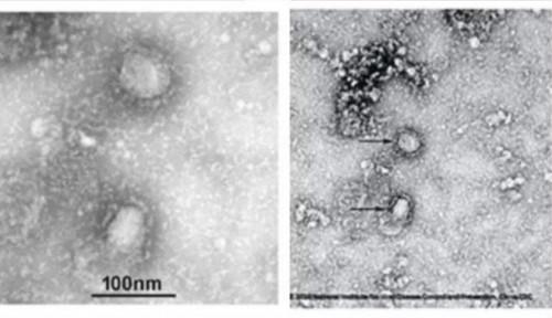 Foto Inikah Lokasi Awal Virus Corona? Bukan China...