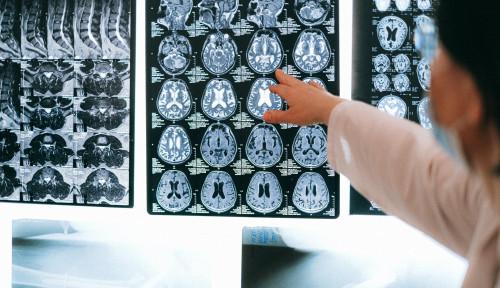 Ternyata Ini Alasan Tumor Otak Glioblastoma Dapat Lolos dari Pengobatan