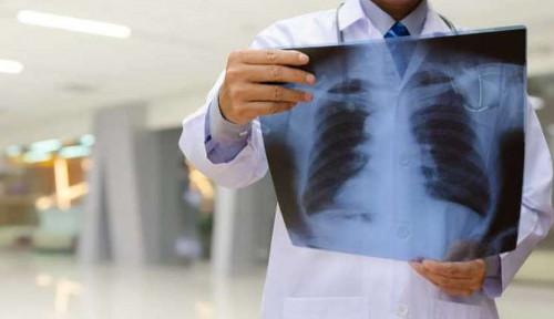 Lakukan Olahraga Ini untuk Menjaga Kesehatan Paru-paru